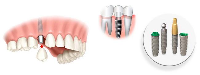 Имплантанты зубов. Заказать недорогие зубные имплантанты в интернет-магазине