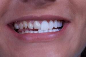 Ставим виниры на зубы